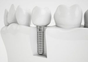 All On Four Dental Implants Can Replace Your Teeth In Time For Your Child's Wedding
