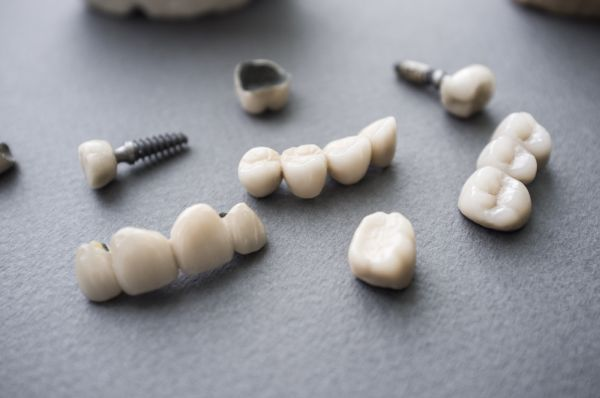 What To Expect At The Appointment For Crown Placement On Implants