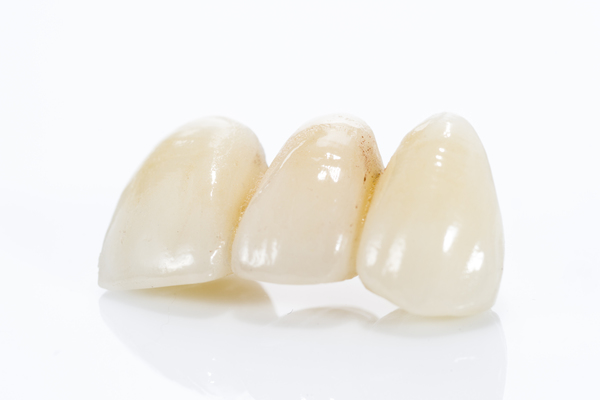 Dental Bridges: Frequently Asked Questions