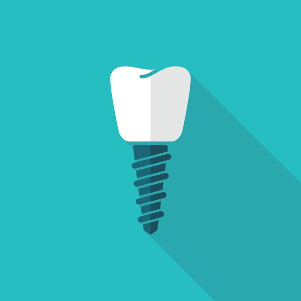Dental Implants And Other Tooth Replacement Options