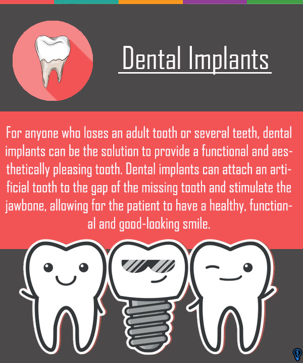 Dental Implants Albuquerque, NM
