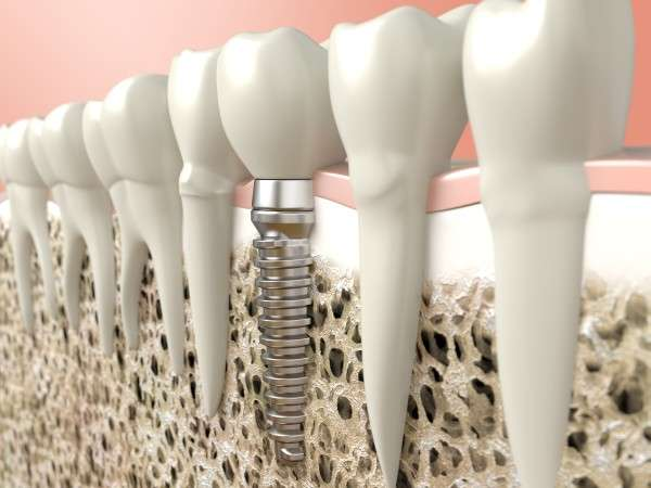 Reasons To Choose Dental Implants Instead Of A Dental Bridge