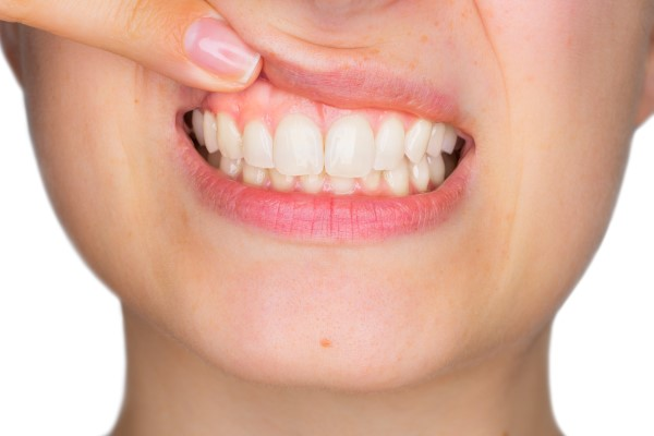 Gum Contouring Treatment Can Help With A Gummy Smile