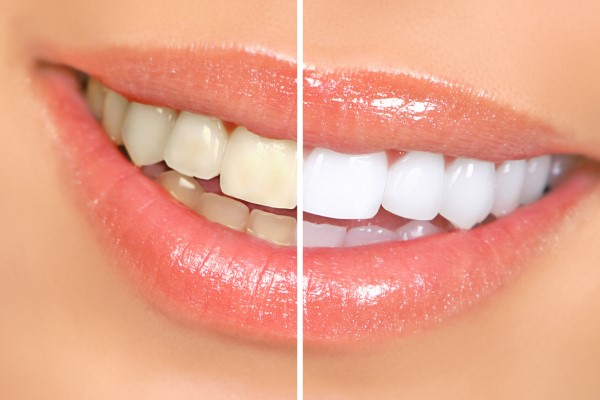 How To Manage Sensitivity After Teeth Bleaching